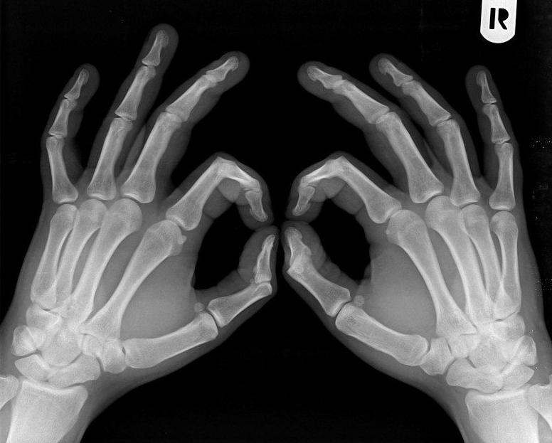 Responsabilitati si salariu pentru Asistent Medical Radiologie si Imagistica Medicala